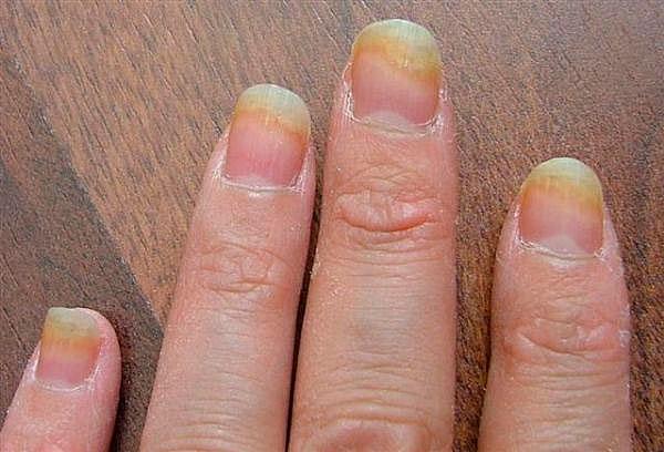 Ногти слоятся из-за грибка ногтей