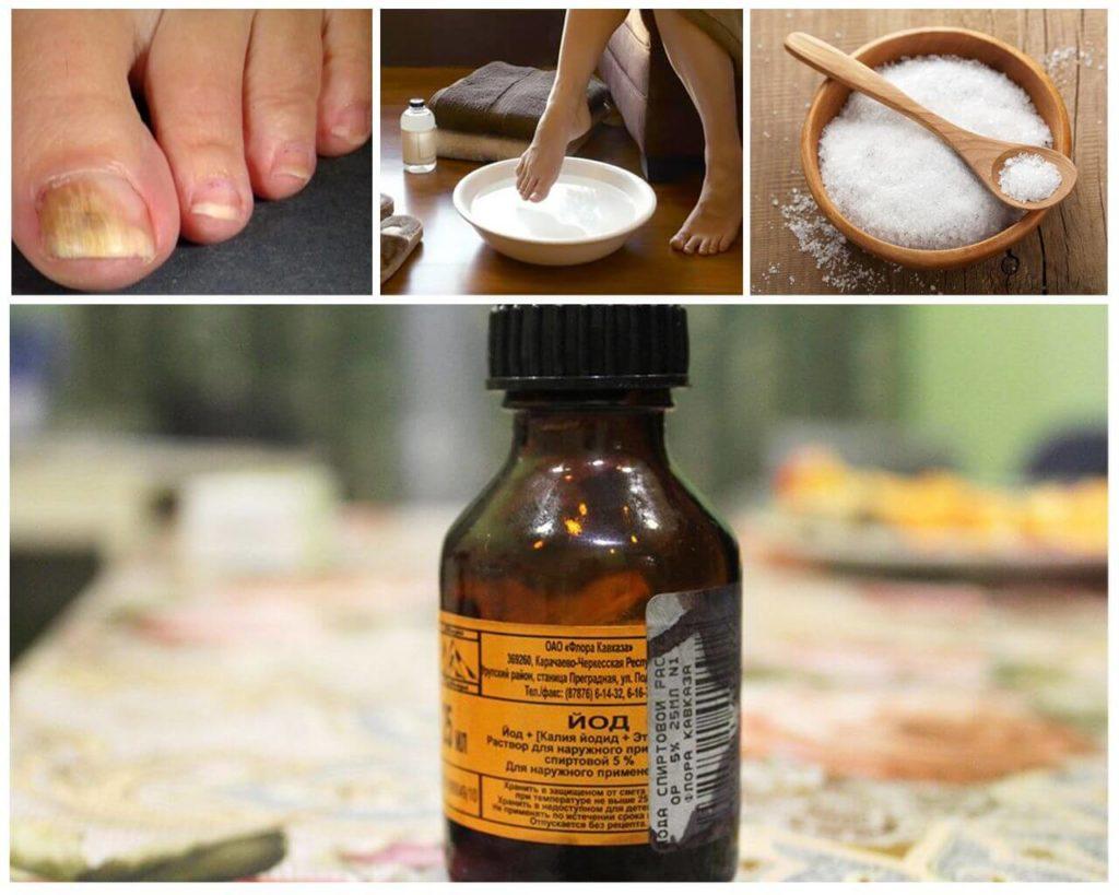 Лечение грибка йодом и солью