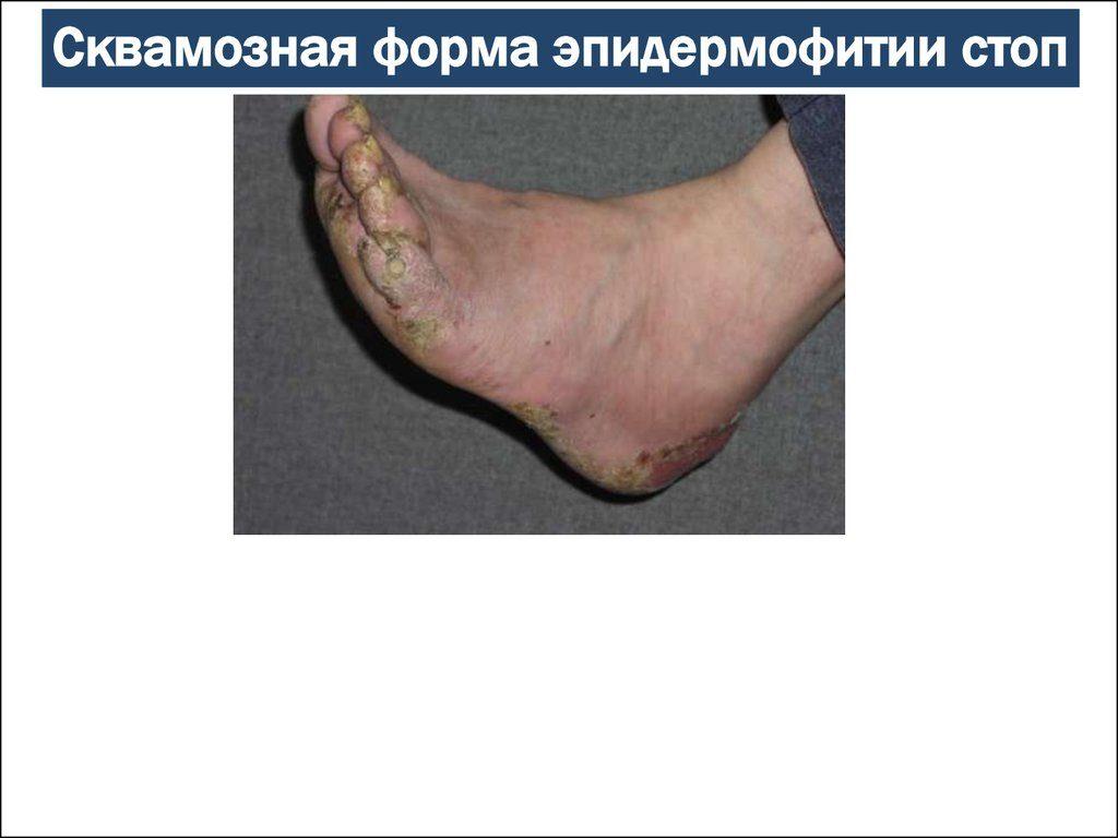 Сквамозная форма заболевания стоп