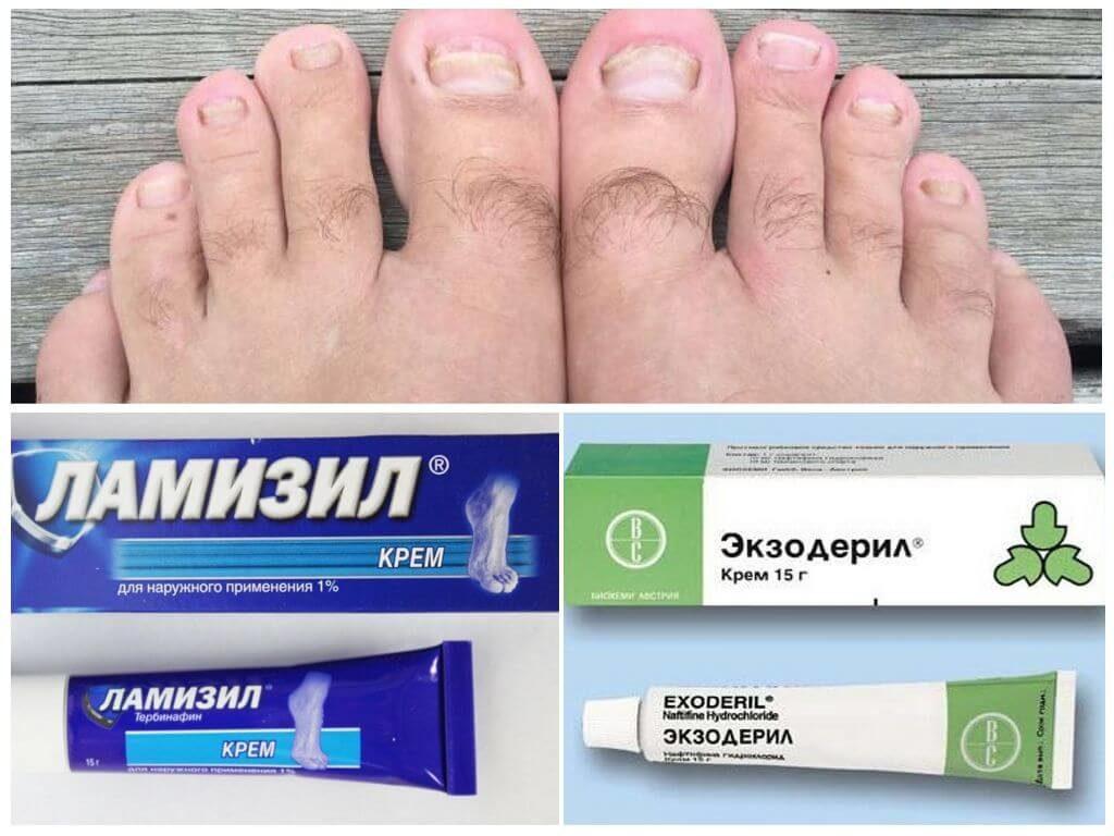 Мази при лечении грибка ногтей