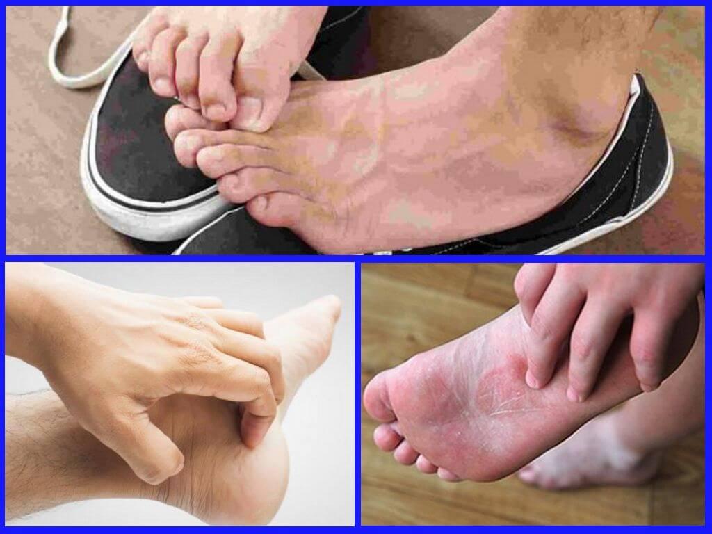 Причина зуда ног