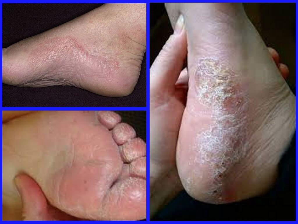 Причины шелушения ног