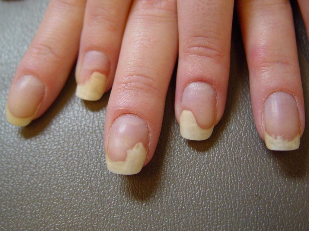 Причины заболевания ногтей