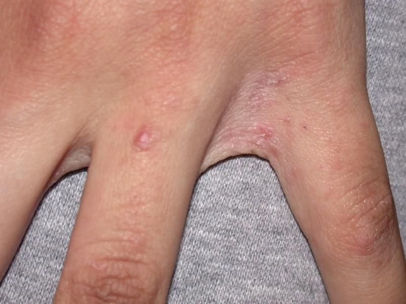 Чесотка между пальцами