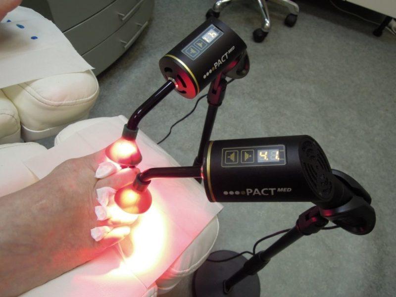 Как проходит процедура лечения лазером