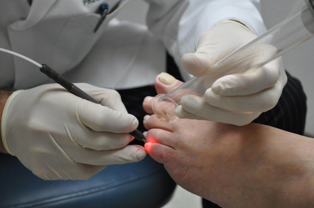 Суть лечения грибка лазером